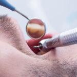 טיפול שורש בשן קדמית